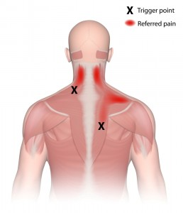 what is a trigger point